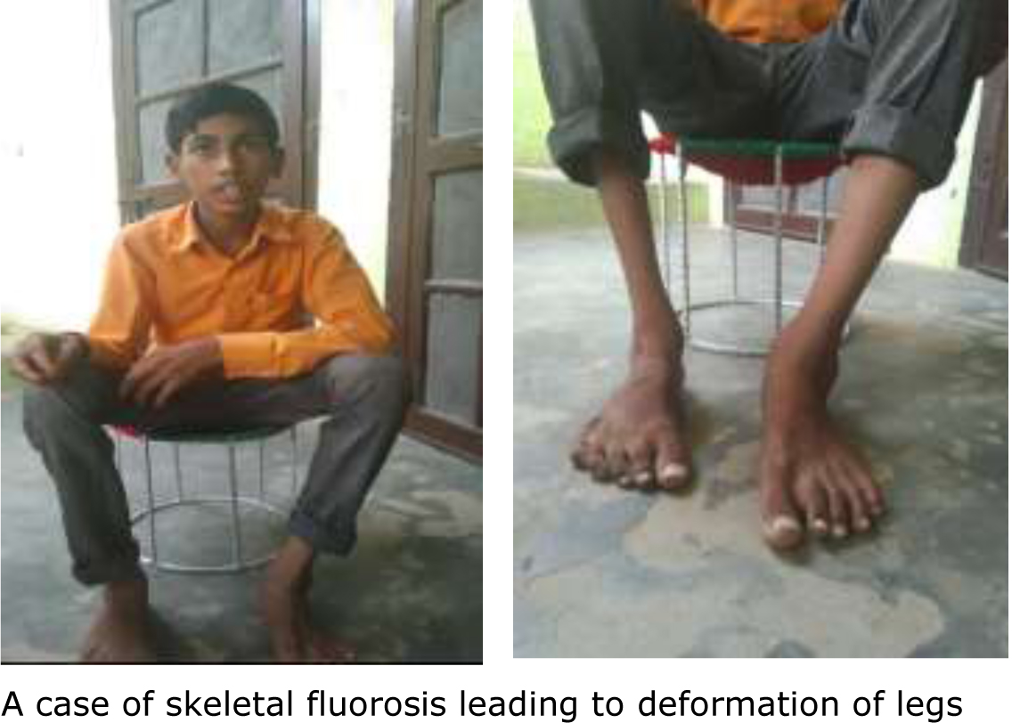 Radio brings fluorosis to light in Nuh